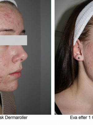 Acne scars - 1 treatment