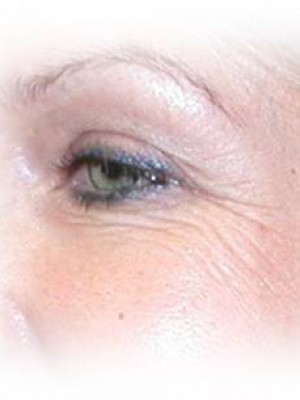 Eye wrinkles - before