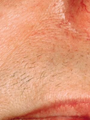 overskæg1 stor