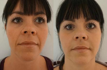 botox før efter